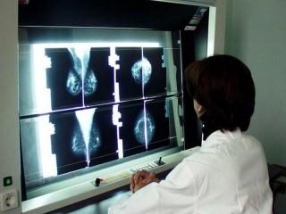 Screening oncologici,prevenzione per la lotta ai tumori