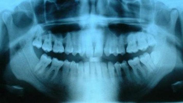 Denti all'arsenico