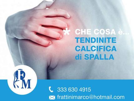Tendinite calcifica di spalla