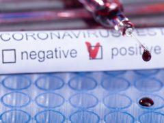Coronavirus, test, tampone, analisi