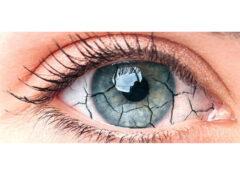 Occhio secco - Ottica Casagrande Lorella